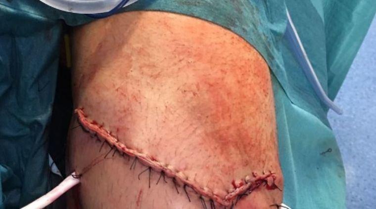 A David Mora le descubren una gran cornada en el Hospital de Albacete tras haber sido operado en el quirófano móvil de Socuéllamos