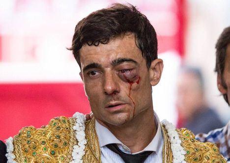 Paco Ureña salva su ojo izquierdo pero se confirma que no recuperará la visión