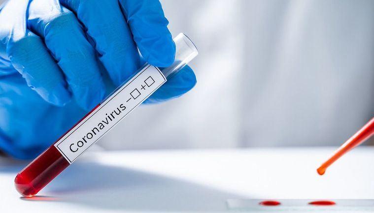 Castilla-La Mancha alcanza los 39 casos positivos por coronavirus COVID-19