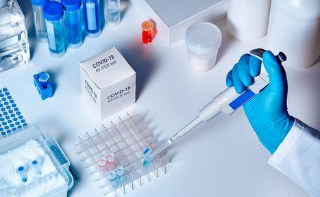 Castilla-La Mancha dispone de un total de 97.000 test rápidos para detectar el coronavirus