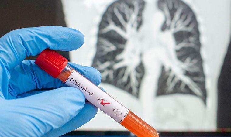 Castilla-La Mancha tiene 17 nuevos casos por infección de coronavirus y se ha registrado 1 fallecido por COVID, en Ciudad Real
