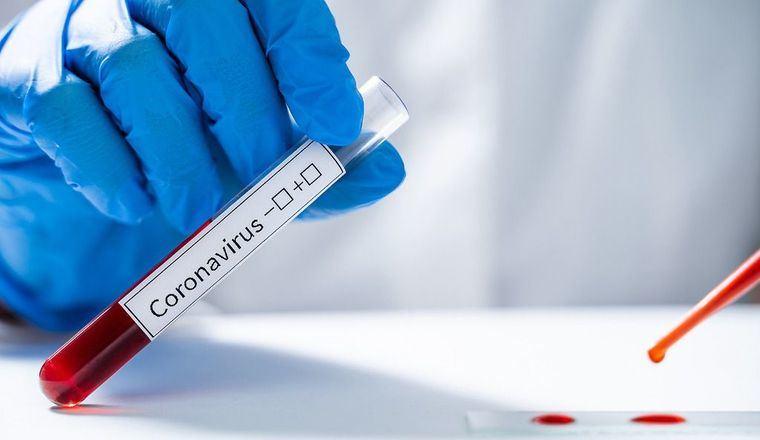 Castilla-La Mancha registra 23 nuevos casos por infección de coronavirus