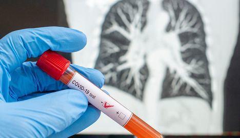 Coronavirus.- Castilla-La Mancha confirma 343 nuevos casos en un día sin fallecimientos en la región